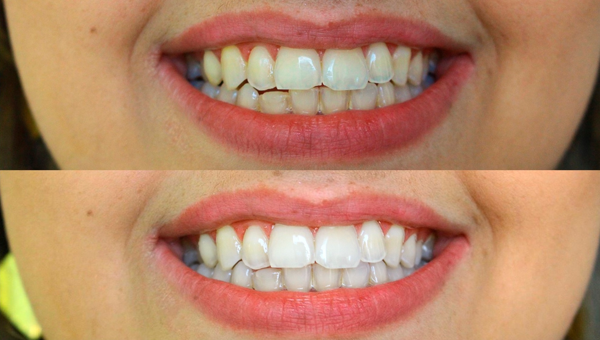 Como Clarear Os Dentes Em Casa Vaidosa E Feminina